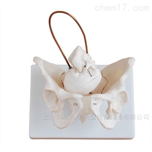 女性骨盆带胎儿头颅骨模型